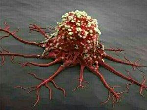 你可能天天都在喂养癌细胞,不知道,抓紧看!