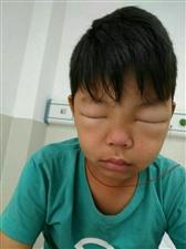 求求揭西县人民协力援助我那多年慢性肾炎的侄子,