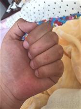 当奶爸真不容易啊。。搓尿布搓的手都搓成这样了