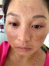 本人专业调理各种疑难杂症,专业修复满脸斑