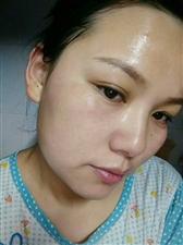 春季皮肤过敏