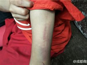 南充8岁女童做错作业被母亲及同居男友殴打警方妇联介入