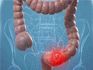 父女同时患上肠癌,医生无奈:这东西吃久了各种癌极易找上门!