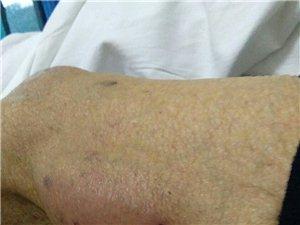 父亲的病――腿部深度脓肿