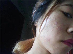 到底该怎么做才能提升皮肤的吸收能力!