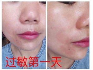 """如果护肤方式错误,可能会损害肌肤,加速衰,所谓""""一步错,步步错"""""""