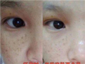 肌肤屏障和斑点有关系吗?