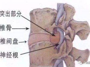 腰椎�g�P突出的根,不在于骨�^,而在于筋,千�f�e�o�t生切啦!
