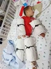 2岁男童昏迷38天,花光家里所有积蓄……又是家里这个东西惹的祸