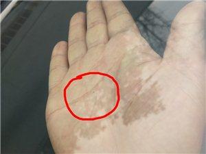 汽�玻璃被硬物�舸虍a生坑洞或者裂痕之后,通�^�渲��硖畛湫扪a