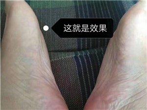 根治脚气灰指甲!