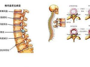 徐氏中�t康�屠懑�室――――椎�g�P膨突,突出是怎么形成的!