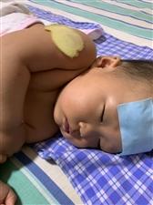 小宝子打了两个疫苗胳膊有肿块,还发烧了,打的百白破和麻风…