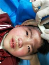 2019年3月14号,我儿子7岁,在龙湖镇光明小学上厕所滑倒摔伤,头部缝了8针,到现在2个多月了,学