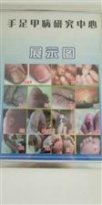 专治灰指甲,甲沟炎,脚气,鸡眼,手足干裂,病毒疣等手足甲病