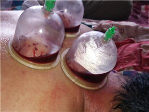 頸肩腰腿疼痛專科