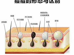 ??护肤知识??:挤掉的粉刺,为什么两三天后又冒出来了?这都是由于自己清除不完全导致的恶果。粉