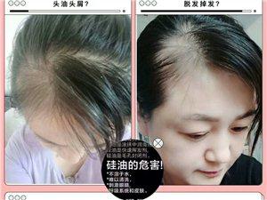 脱发怎么办??