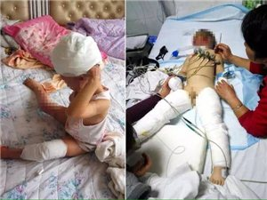 亳州大杨镇,亲妈向3岁儿子身上浇汽油点燃
