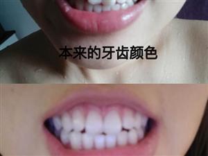 碧缇福冷光美白牙齿