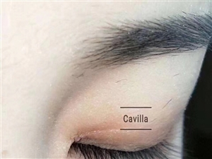 Cavilla睫毛增长液!不嫁接,不种植,自体生长一支无效全额退款!真正做到售后无忧