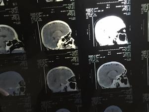 """入秋以来,时常昏噩,倜傥之人,何堪其扰。用美国GE64排128层螺旋CT扫描:""""头部,脑实质内未见"""