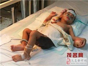 【高州新闻】高州小男孩跌下粥煲烫伤,旁人看着都心疼!
