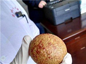 男子膀胱内取出鸭蛋大结石 重量超过1斤