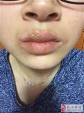 姑娘就爱撕嘴唇上的干皮,结果得了1种病