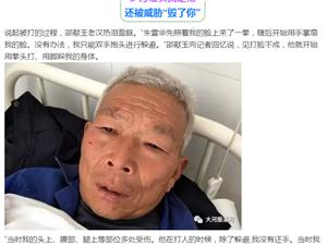 【沙澧观察】村书记暴打62岁老汉 : 耳膜穿孔/折3根肋骨...