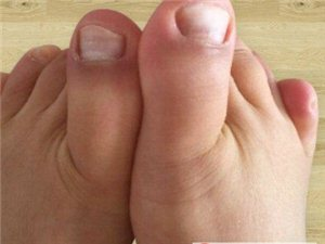 灰指甲要怎么治疗,灰指甲会传染给家人吗,灰指甲怎么预防传染?