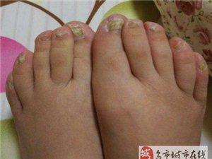 灰指甲会传染吗?灰指甲需要怎么去除?