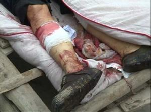 夹江木城一老人被机器意外割伤失血过多死亡