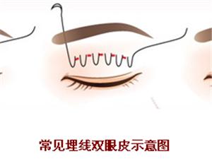 明眸亮眼固美丽,双眼皮手术如何选择你知道吗?