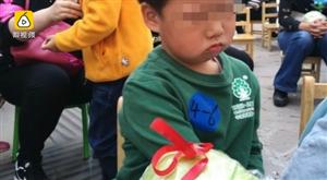 幼儿园开运动会冠军奖品竟是一颗大包菜