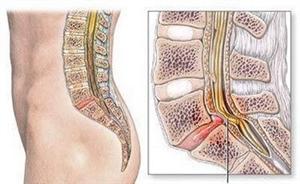 腰椎管狭窄是怎么回事看专家解读