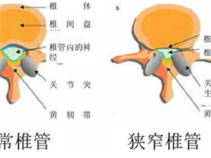 腰椎管�M窄是怎么回事看�<医庾x