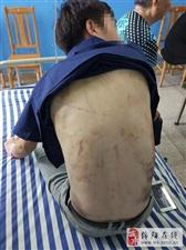 绵阳游仙一男子被骗到缅甸参赌惨遭殴打虐待