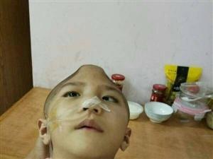 歹毒后妈,残忍虐待6岁继子,孩子颅骨被打碎!