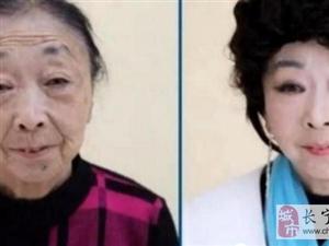 71岁老妇人为嫁39岁男子,来医整容,真爱!