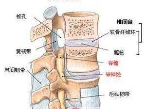 腰椎间盘突出症的非手术治疗和中西药治疗方法有哪些