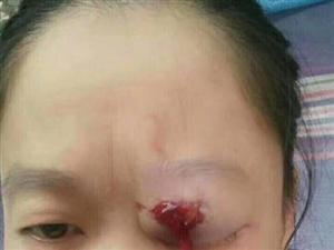 滨州阳信黑心开发商暴力拆迁打伤哺乳期妈妈