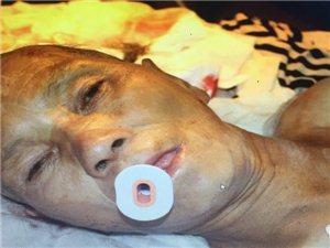 �o急�U散:��重��者躺在�f�d人民�t院ICU病房,全城�ふ移浼�伲�
