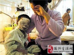 2岁宝宝厨房玩耍,一壶热水从头浇下,奶奶做法救了孩子