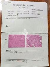 水滴筹:我是云南李文琼患乳腺癌,手术后转移,恳请好心人救救