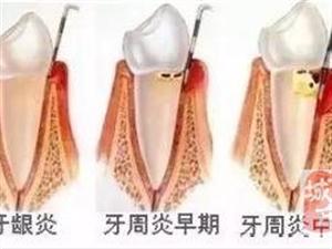 洗牙和牙周刮治的区别在哪里?