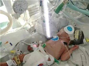 化州一位乡村女教师诞下早产双胞胎,最小的婴儿仅矿泉水瓶大小!