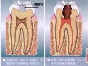 补牙后牙齿反而酸痛,这是什么回事?