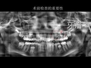 牙片的重要性!