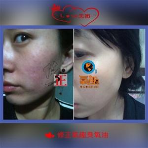 修正臭氧油告诉你怎么治疗痘痘,怎么治疗激素脸